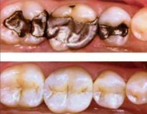 ballarat-dentist-composite-white-filling