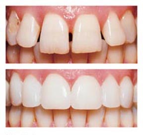 ballarat-dentist-dental-veneers