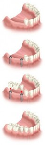 Dental Implants Several Tooth