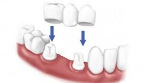 Porcelain Dental Crown Ballarat