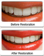 Recontouring Teeth Ballarat