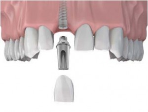 ballarat-dentist-single-teeth-implant