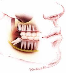 Wisdom Teeth Removal Ballarat