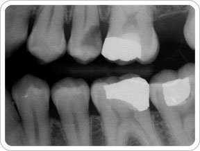 dentist-ballarat-x-ray